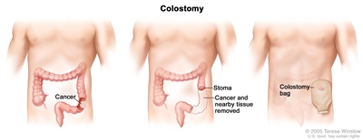 Three-panel drawing showing colon cancer surgery with colostomy; first panel shows the area of the colon with cancer, middle panel shows the cancer and nearby tissue removed and a stoma created, last panel shows a colostomy bag attached to the stoma.