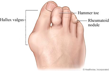 Picture of rheumatoid arthritis in the foot